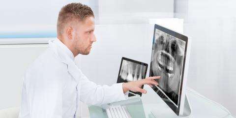 FAQ About Dental Cavities, Waterloo, Illinois