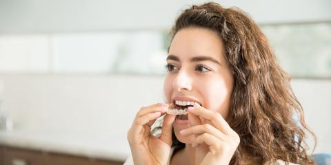 4 FAQ About Invisalign® Teeth Aligners, Waterloo, Illinois