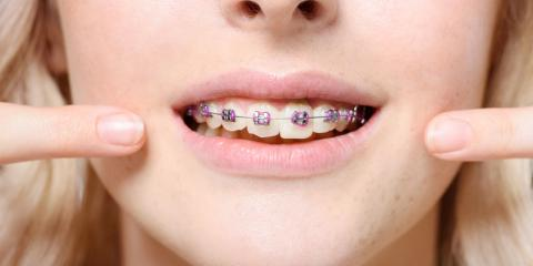 3 Tips for Helping a Teen Adjust to Braces, Wausau, Wisconsin
