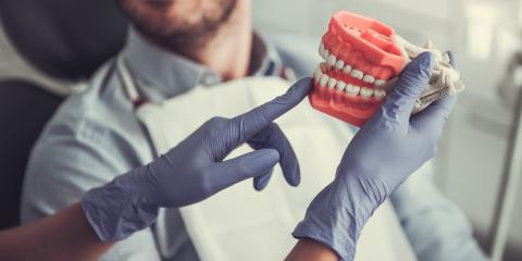 A Guide to Getting Dentures, Waynesboro, Virginia