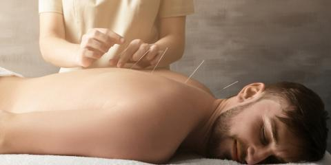3 Ways Acupuncture Helps Sciatica & Back Pain, Webster, New York