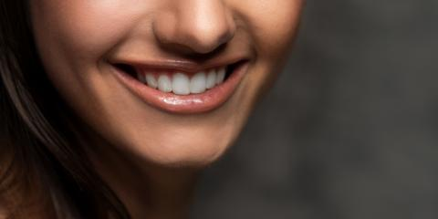 5 Beverages You Should Avoid After a Teeth Whitening Session, Webster, New York