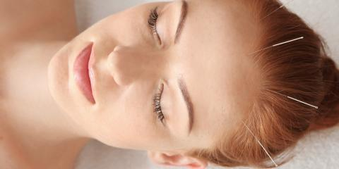 What Is Acupuncture?, West Hartford, Connecticut