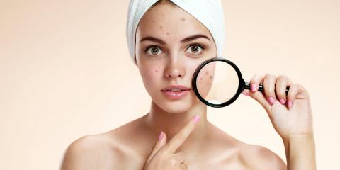The 3 Best Acne Treatments, West Orange, New Jersey