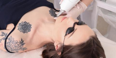 How Does Tattoo Removal Work? , West Plains, Missouri
