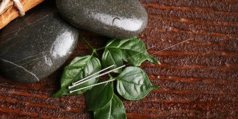 How Acupuncture & Homeopathy Work Together in Onco-immunology, North Hempstead, New York