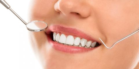 3 Amazing Benefits of Cosmetic Dentistry, From Scarsdale's Best Dental Spa, Scarsdale, New York