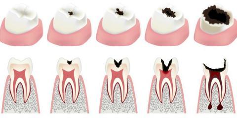 All about Cavities!, Manhattan, New York