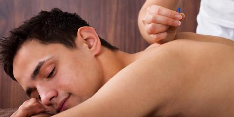 What Can You Expect From Your First Acupuncture Appointment? , Webster, New York