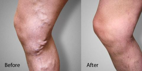 What Causes Varicose Veins? , Manhattan, New York