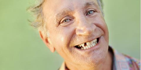 What Happens if You Don't Replace a Missing Tooth? A Rochester Dentist Explains, Gates, New York