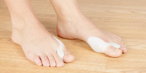 What to Know About Bunion Surgery , Blue Ash, Ohio