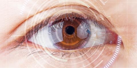 What You Can Expect From Cataract Surgery , Monroe, North Carolina
