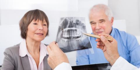 When Does a Patient Need a Tooth Extraction?  , Lexington-Fayette Central, Kentucky