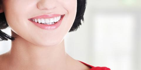 Why Dentists Recommend Professional Teeth Whitening, Statesboro, Georgia