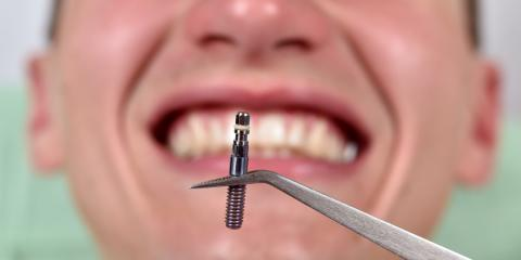 How Do Dental Implants Actually Work? What All Patients Should Know, Windsor, Wisconsin