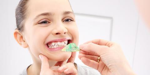 4 FAQ About Dental Misalignment, Wisconsin Rapids, Wisconsin