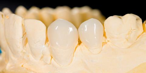 Everything You Need to Know About Veneers Before Making the Investment, Onalaska, Wisconsin
