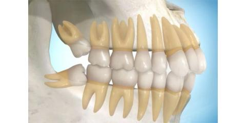 Do you Need Your Wisdom Teeth Removed?, Manhattan, New York