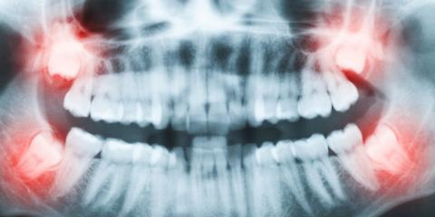 Problems With Your Wisdom Teeth? 3 Signs They Need to Come Out, Fishersville, Virginia