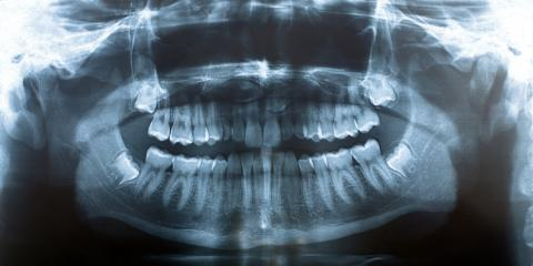 Everything You Need to Know About Wisdom Teeth Removal, Warner Robins, Georgia