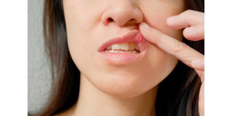 Ten Remedies For Canker Sores, North Branch, Minnesota