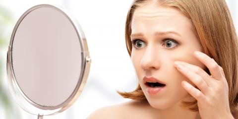 3 Types of Acne Treatments, Pinehurst, North Carolina