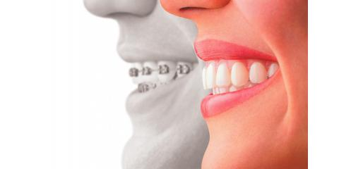 Clear Choice Orthodontics Explains The Benefits Of Using Retainers After Orthodontic Treatment, Lexington-Fayette, Kentucky